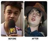 Celebrity Drug Addicts Photos